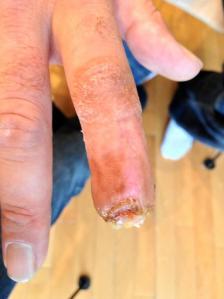 missing finger tip