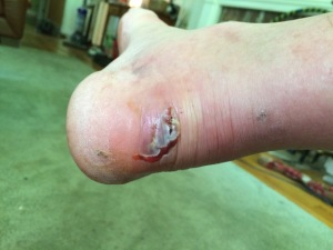 Injured heel