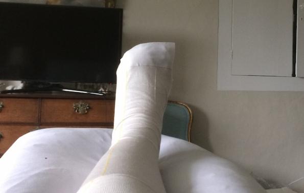 Woman loses toe